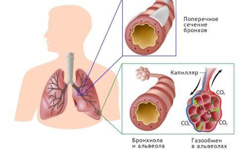 Как вывести мокроту у грудничка