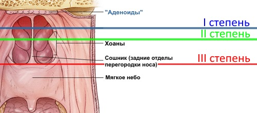 Три степени аденоидита у детей