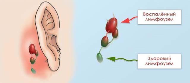 Воспаление лимфоузлов около ушей
