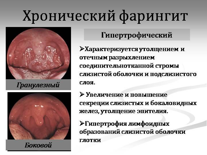 Гранулезный фарингит – причины, симптомы и лечение