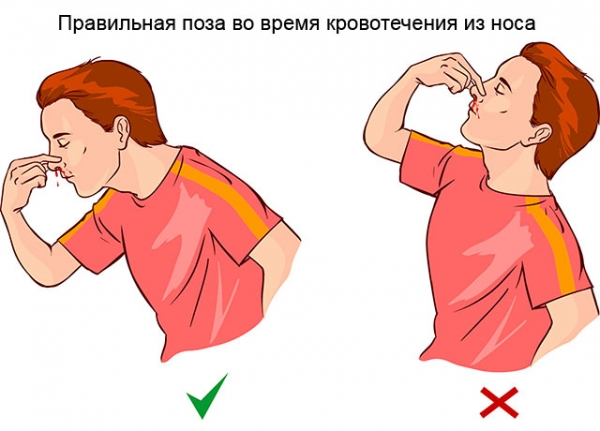 Как сделать, чтобы пошла кровь из носа — без боли, в домашних условиях. Как вызвать кровь из носа специально и безопасно