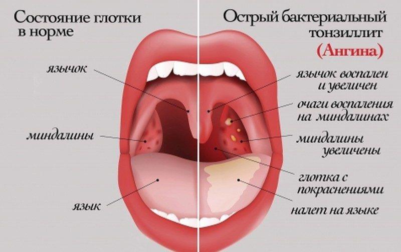 Как выглядит ангина у взрослых: виды, фото и лечение