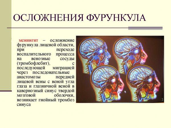 Фурункул в ухе: причины возникновения и симптомы, лечение нарыва в стационарных и домашних условиях