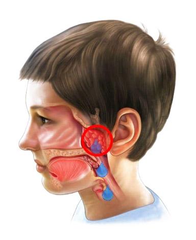 Можно ли вылечить аденоиды у детей без операции в домашних условиях