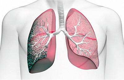 Пневмофиброз легких: что это такое, чем опасен и последствия, лечение народными средствами