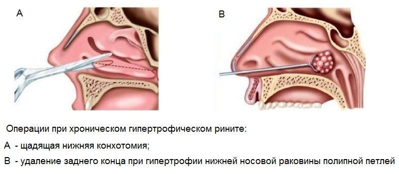 Конхотомия носовых раковин