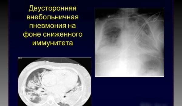 Двухсторонняя нижнедолевая пневмония: симптомы, клиническая картина, диагностика, оказания первой медицинской помощи, медикаментозное лечение, физиотерапия, народная медицина
